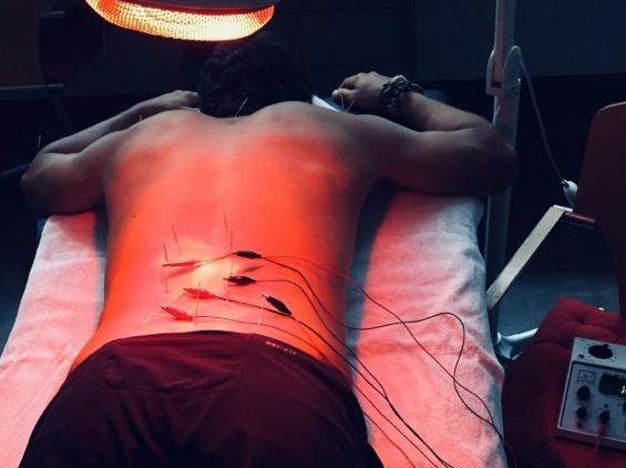 """""""L'acupuntura t'activa el cos i et carrega al màxim els teus dipòsits d'energia"""""""